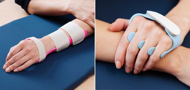 handrehabilitation-schienen