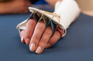 Dynamische Schiene nach einer Nervenverletzung