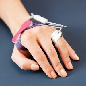 Streckquengelschiene für das Fingergrundgelenk